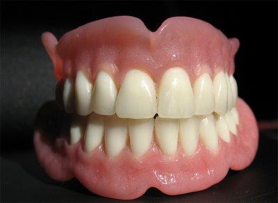 protesis-dentales1