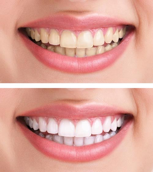 tratamiento-blanqueamiento-dental