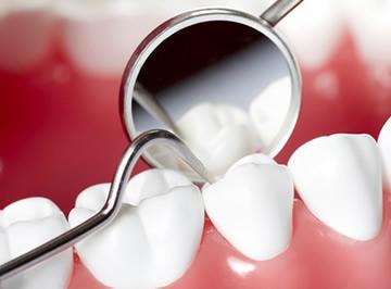 periodonciaddd