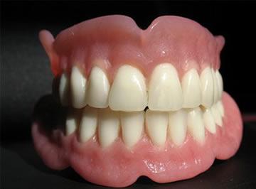 protesis-dentales1dd